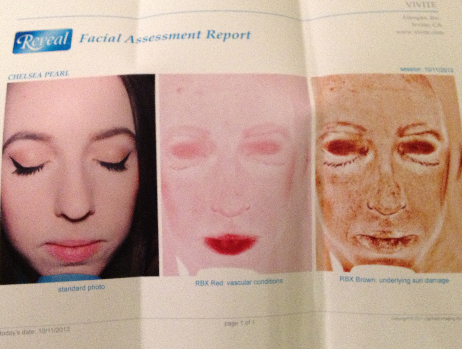 SkinSpirit Reveal Facial Assessment Report