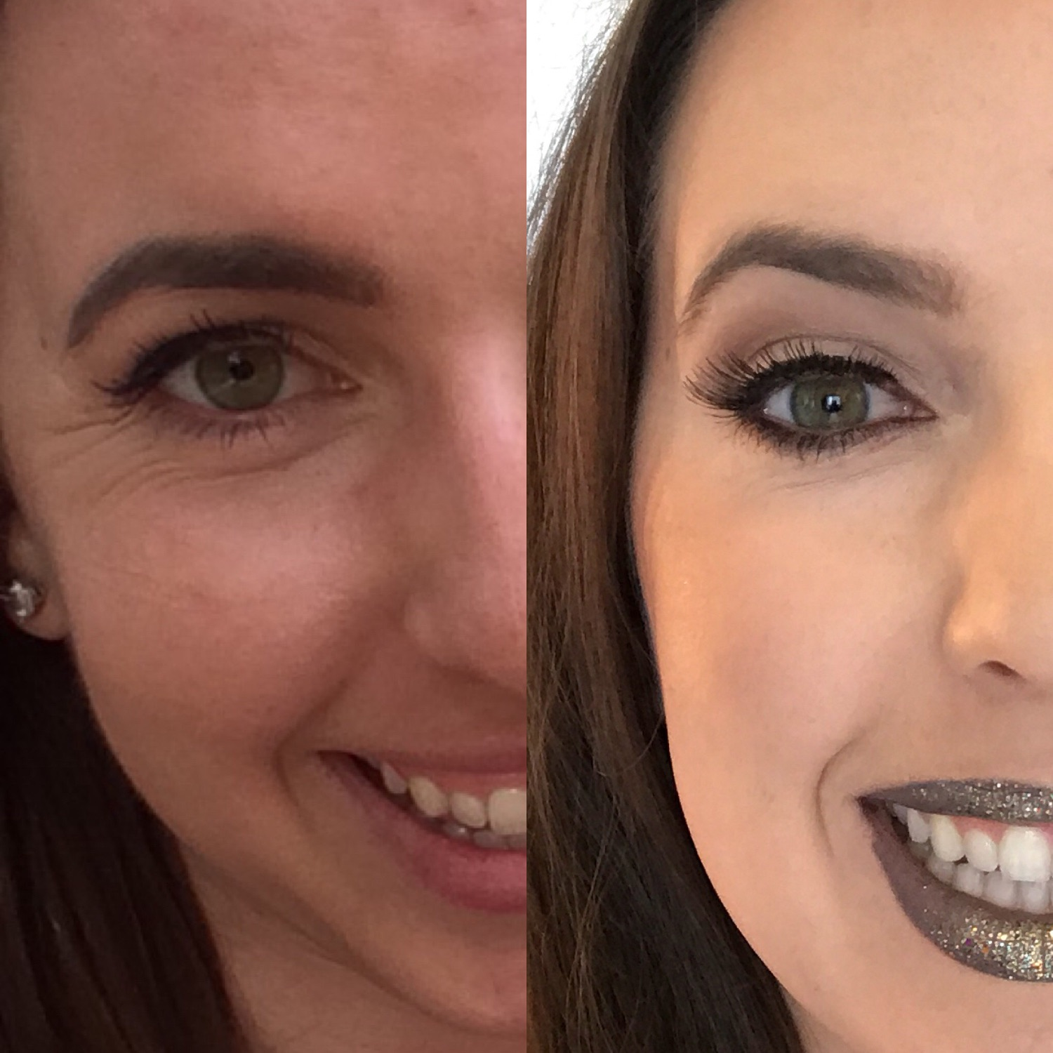 crows feet botox before and after