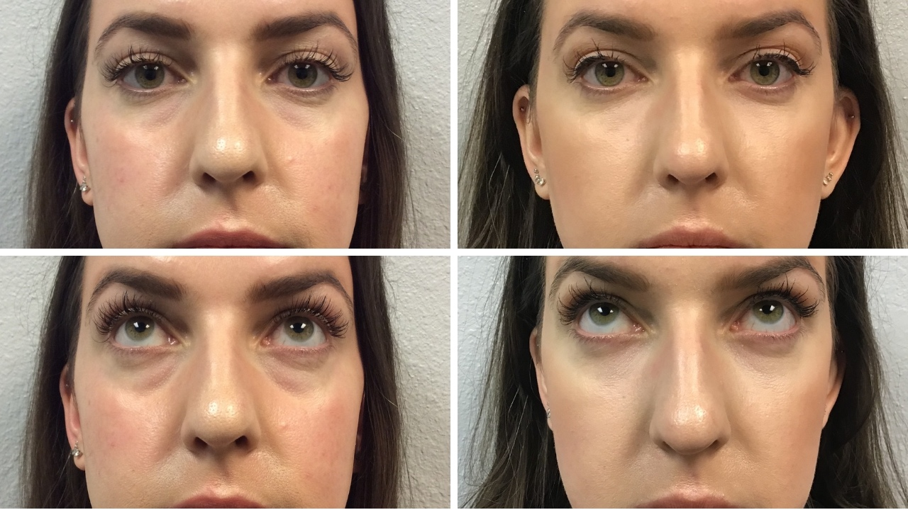 All About Under Eye Filler | Restylane, Before & After Photos, Cost