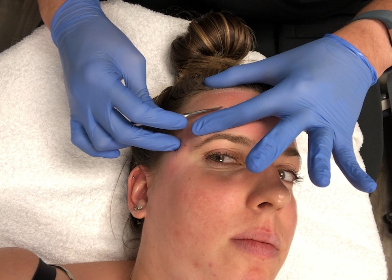 Facial Dermaplaning Hairline